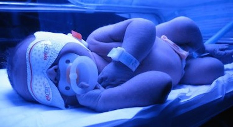 Jaundice in Newborns (Neonatal Jaundice)